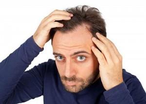 بهترین روش کاشت مو چیست؟