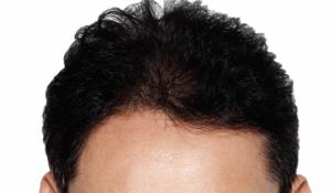کاشت مو و روشهای آن