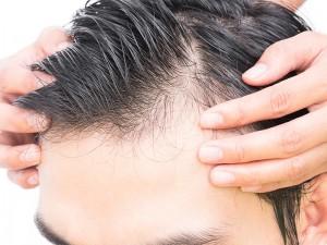 مراقبت از موهای کاشته شده بعد از کاشت مو