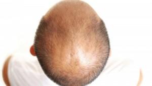 توصیه هایی که قبل از کاشت مو باید بدانید