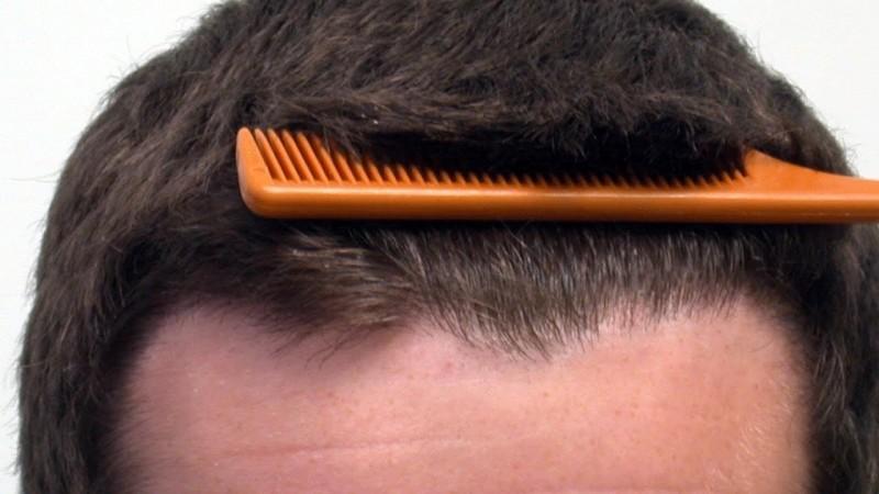 هر آنچه باید در مورد کاشت مو sut بدانیم