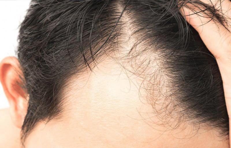 با عوارض کاشت مو آشنا شوید