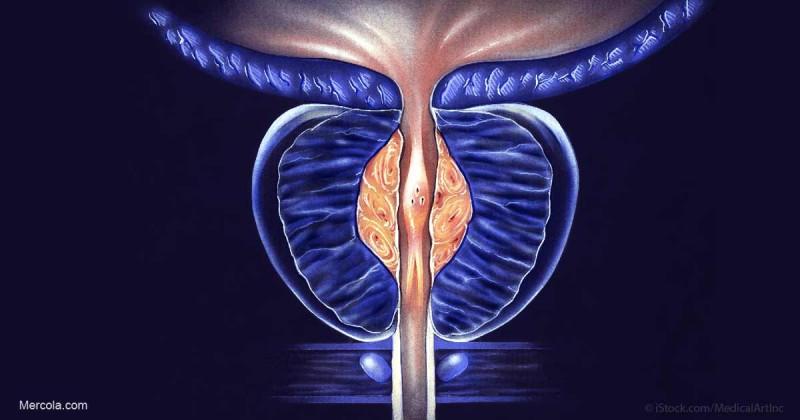 سرطان پروستات، علائم و نشانه ها و راههای تشخیص و درمان آن