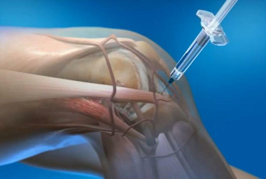 تزریق PRP و درمان زانودرد
