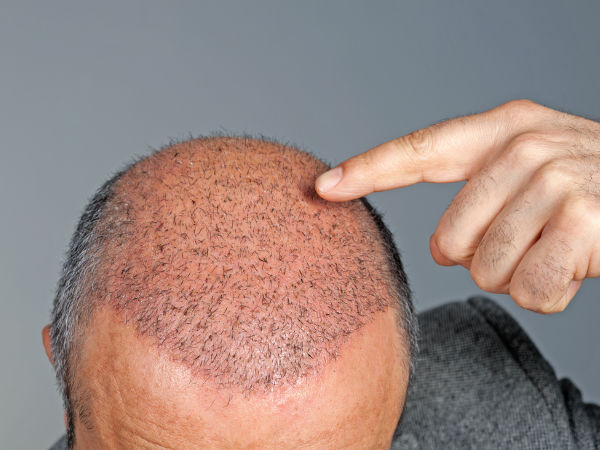 عوارض کاشت مو