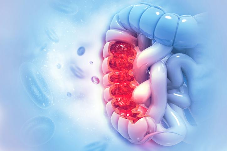 علائم و نشانه های سرطان روده بزرگ