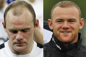 کاشت مو در ورزشکاران