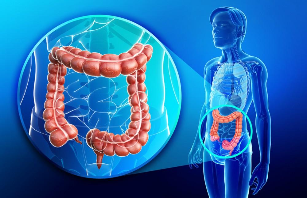 جراحی رایج ترین راه درمان سرطان روده بزرگ است