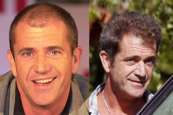 کاشت مو و هنرپیشه های مشهور