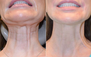 کاهش خطوط عرض گردن