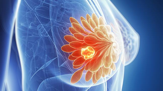 جع عواملی خطر ابتلا به سرطان سینه را افزایش می دهند