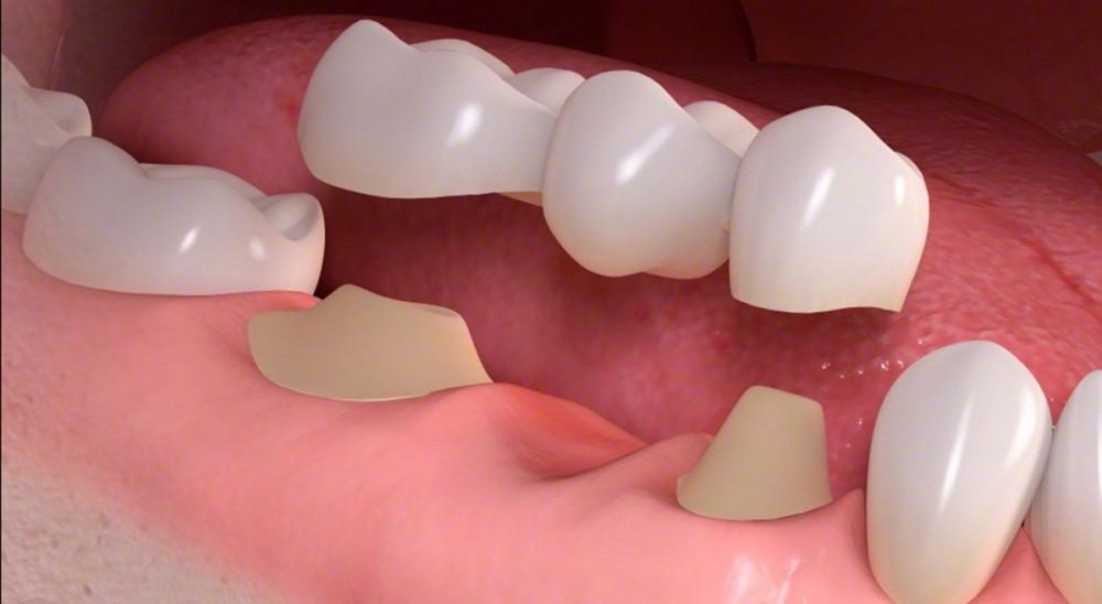 ایجاد اتصال بین دندانها