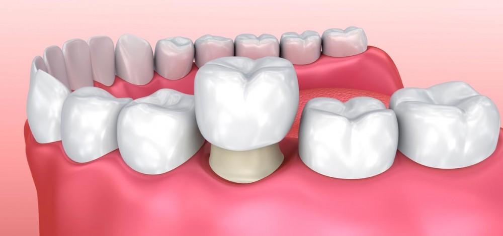 تاج گذاشتن روی دندان