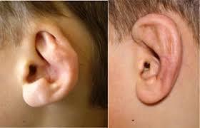 درمان مشکلات گوشها