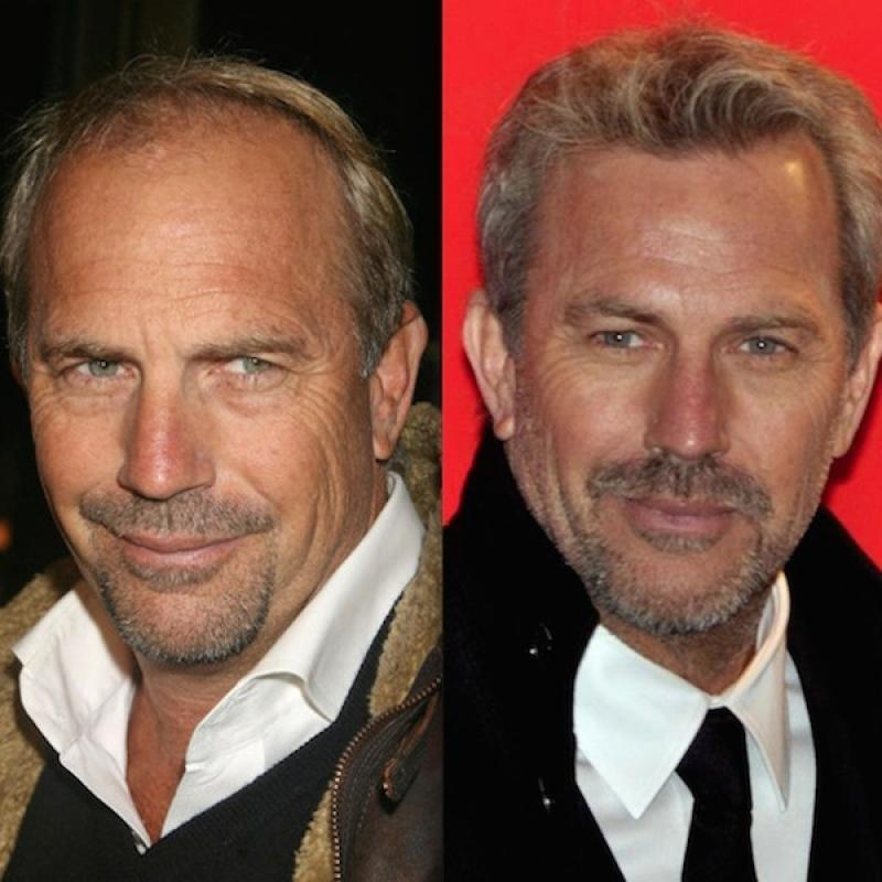 کاشت مو در هنرپیشه ها