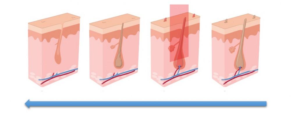 مراحل لیزر موهای زائد