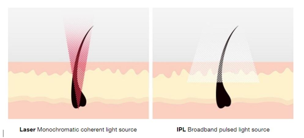مقایسه لیزر و IPL