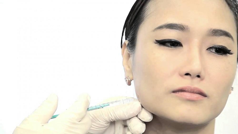تزریق بوتاکس و زاویه دار کردن صورت