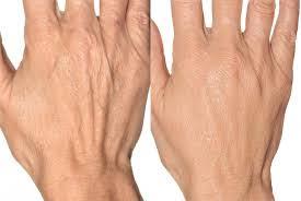 جوانسازی دست ها