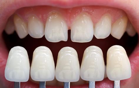 روکش کردن دندان