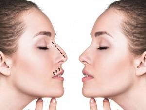در مورد جراحی زیبایی بینی بیشتر بدانید