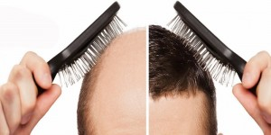هر آنچه باید در مورد کاشت مو در شیراز بدانید