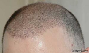 هر آنچه باید در مورد کاشت مو در مشهد بدانید