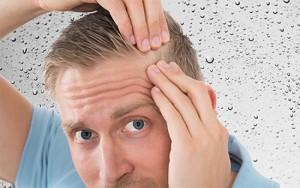 هر آنچه باید در مورد کاشت مو در اهواز بدانید