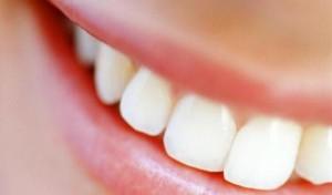 در مورد جراحی زیبایی دندان در اصفهان بیشتر بدانید
