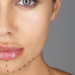 با زاویه دار کردن صورت در همدان بیشتر آشنا شوید