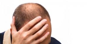 هر آنچه باید در مورد کاشت مو در قزوین بدانید