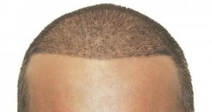 هر آنچه باید در مورد کاشت مو در کرمان بدانید