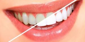 در مورد جراحی زیبایی دندان در کرمان بیشتر بدانید