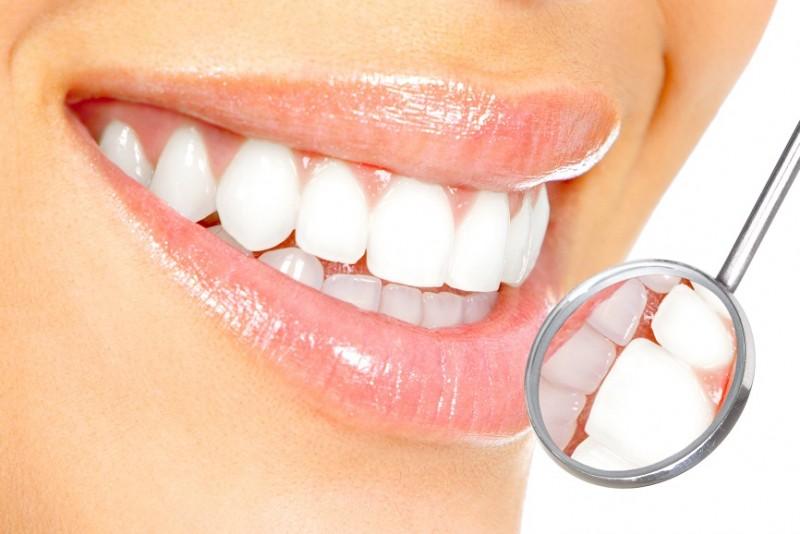 زیباسازی دندان و روشهای آن
