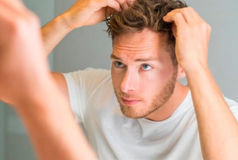 هر آنچه باید در مورد کاشت مو در کرج بدانید