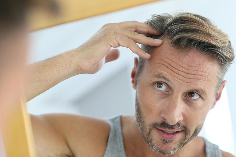 هر آنچه باید در مورد کاشت مو در بندرعباس بدانید