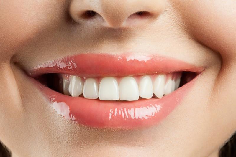 در مورد جراحی زیبایی دندان در اهواز بیشتر بدانید