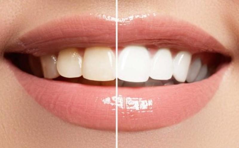 در مورد جراحی زیبایی دندان در بندرعباس بیشتر بدانید
