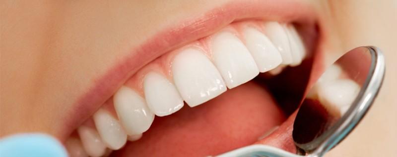 در مورد جراحی زیبایی دندان در کرج بیشتر بدانید