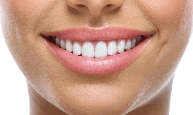 در مورد جراحی زیبایی دندان در مشهد بیشتر بدانید