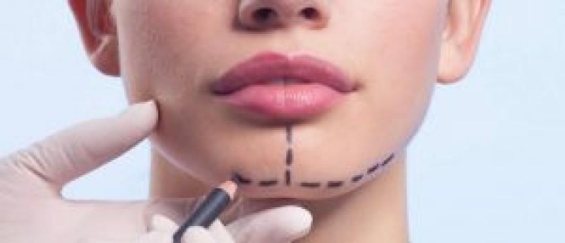 با زاویه دار کردن صورت در ارومیه بیشتر آشنا شوید