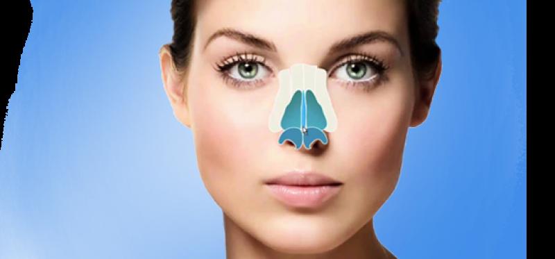 همه چیز در مورد جراحی زیبایی بینی در سمنان