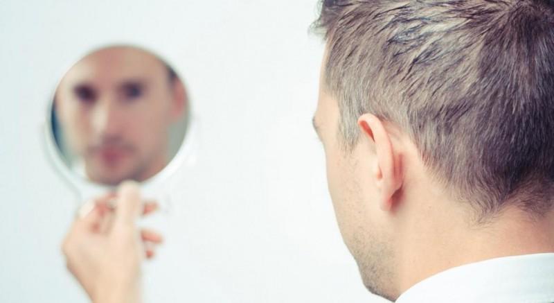 هر آنچه باید در مورد کاشت مو در اردبیل بدانید