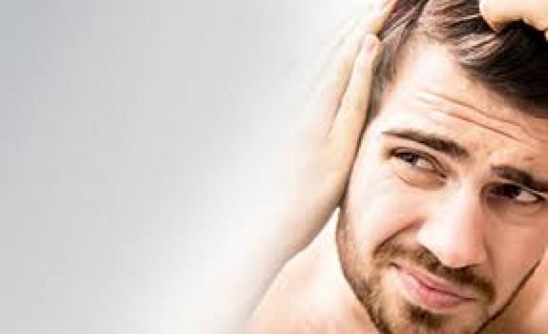 هر آنچه باید در مورد کاشت مو در ایلام بدانید