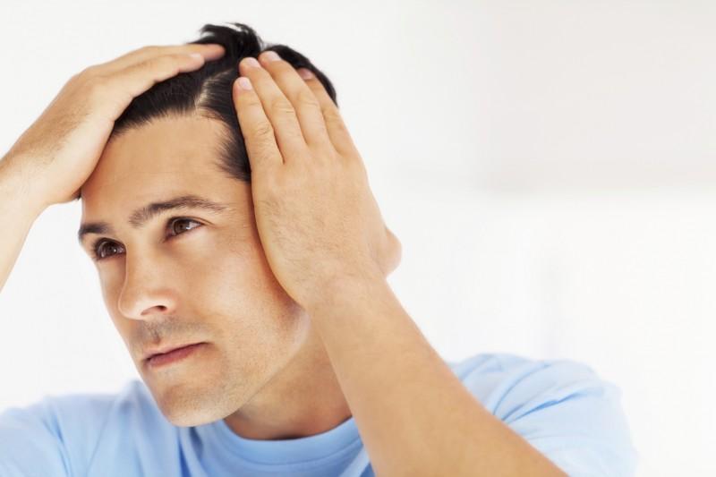 هر آنچه باید در مورد کاشت مو در بجنورد بدانید