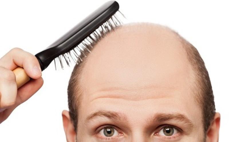 هر آنچه باید در مورد کاشت مو در بوشهر بدانید