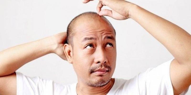 هر آنچه باید در مورد کاشت مو در بیرجند بدانید