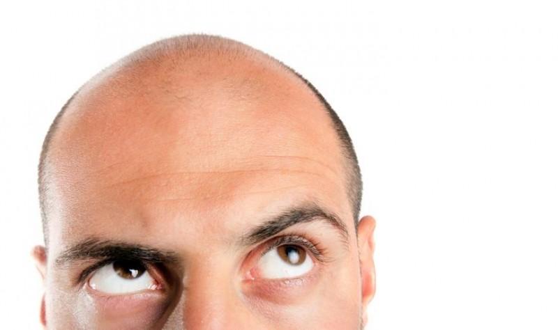 هر آنچه باید در مورد کاشت مو در خرم آباد بدانید
