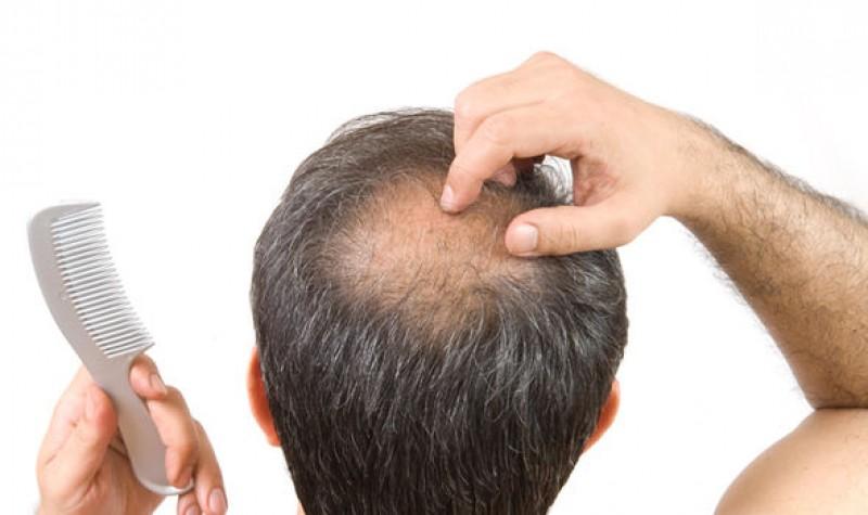 هر آنچه باید در مورد کاشت مو در رشت بدانید