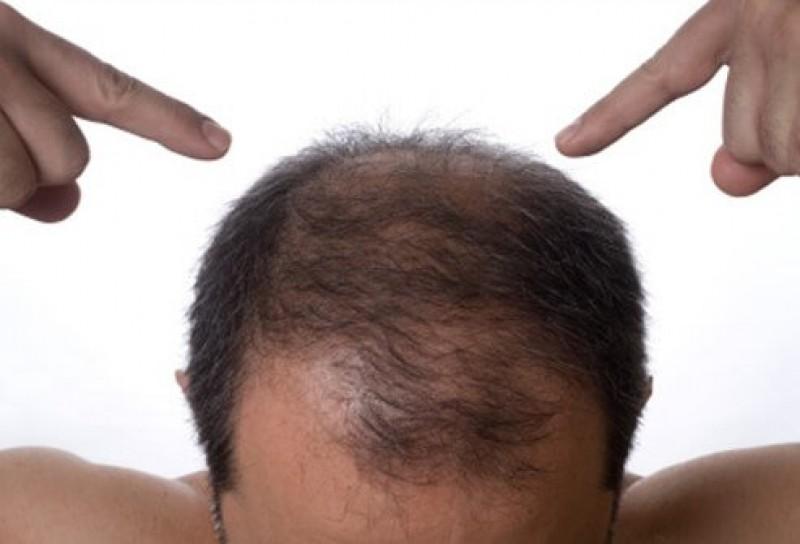 هر آنچه باید در مورد کاشت مو در سمنان بدانید